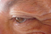 Aging Eyes and AMD